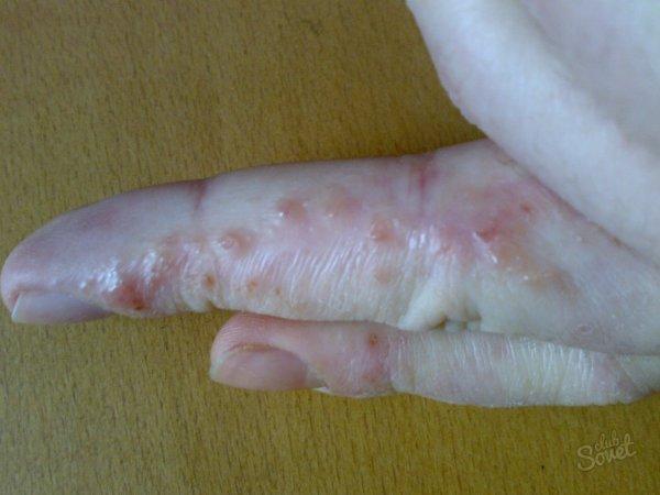 Пузырьки на пальцах рук ? водянистые шарики на пальцах